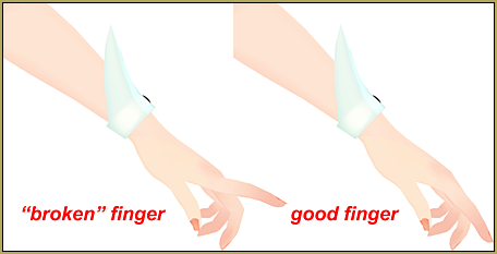 Be careful when posing MMD models... anatomy is important!